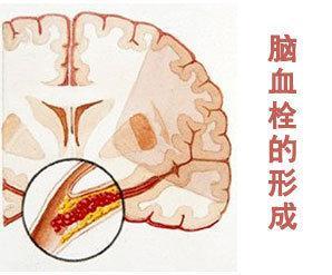 脑血管闭塞的症状